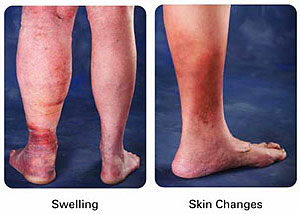 treatment for dvt in leg