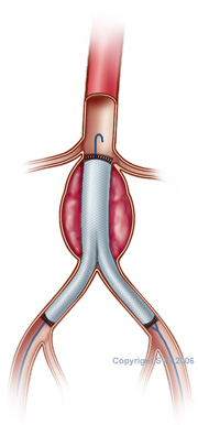 aneurysm repair stent surgery