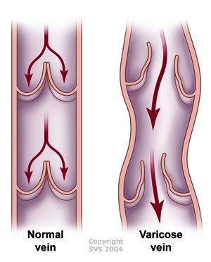 varicose vein valve reflux disease