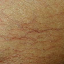 spider veins skin