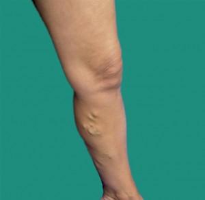 Appearance Leg Varicose Vein